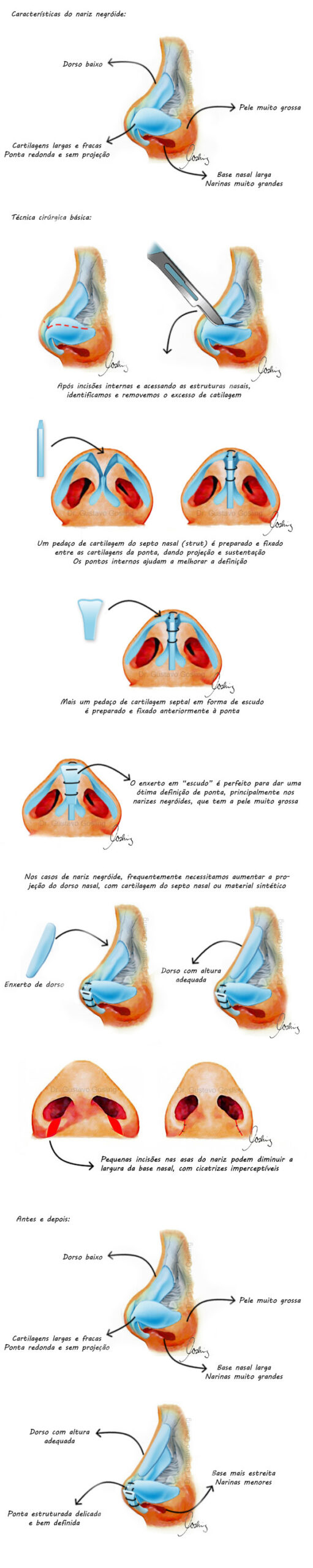 Tecnica rinoplastia nariz negroide