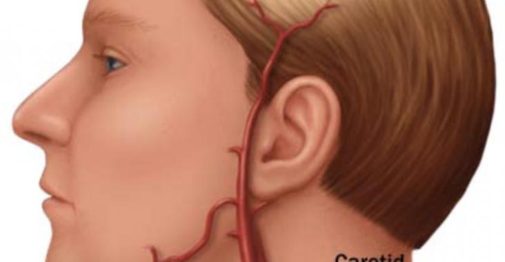 Artéria-carótida