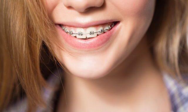 aparelho dente bh
