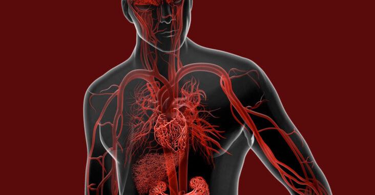 doencas-vasculares