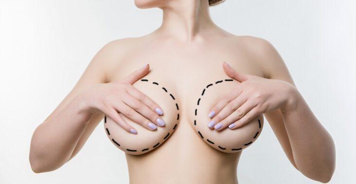 redução de mama bh