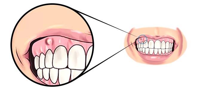abcesso-dentario