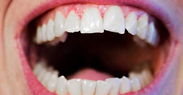 dentes-brancos-e-saudadeis
